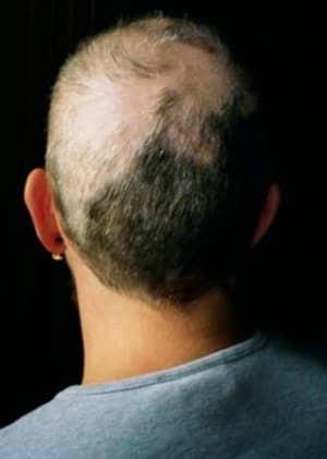 מה זה טריכוטילומניה - תלישת שיערות