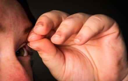 טריכוטילומניה - איך מטפלים בתלישת שיערות
