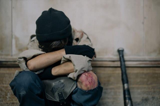 שאלון PTSD